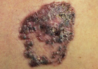 Photograph of pigmented basal cell cancer